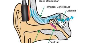 Cuffie a conduzione ossea - le migliori per lo sport